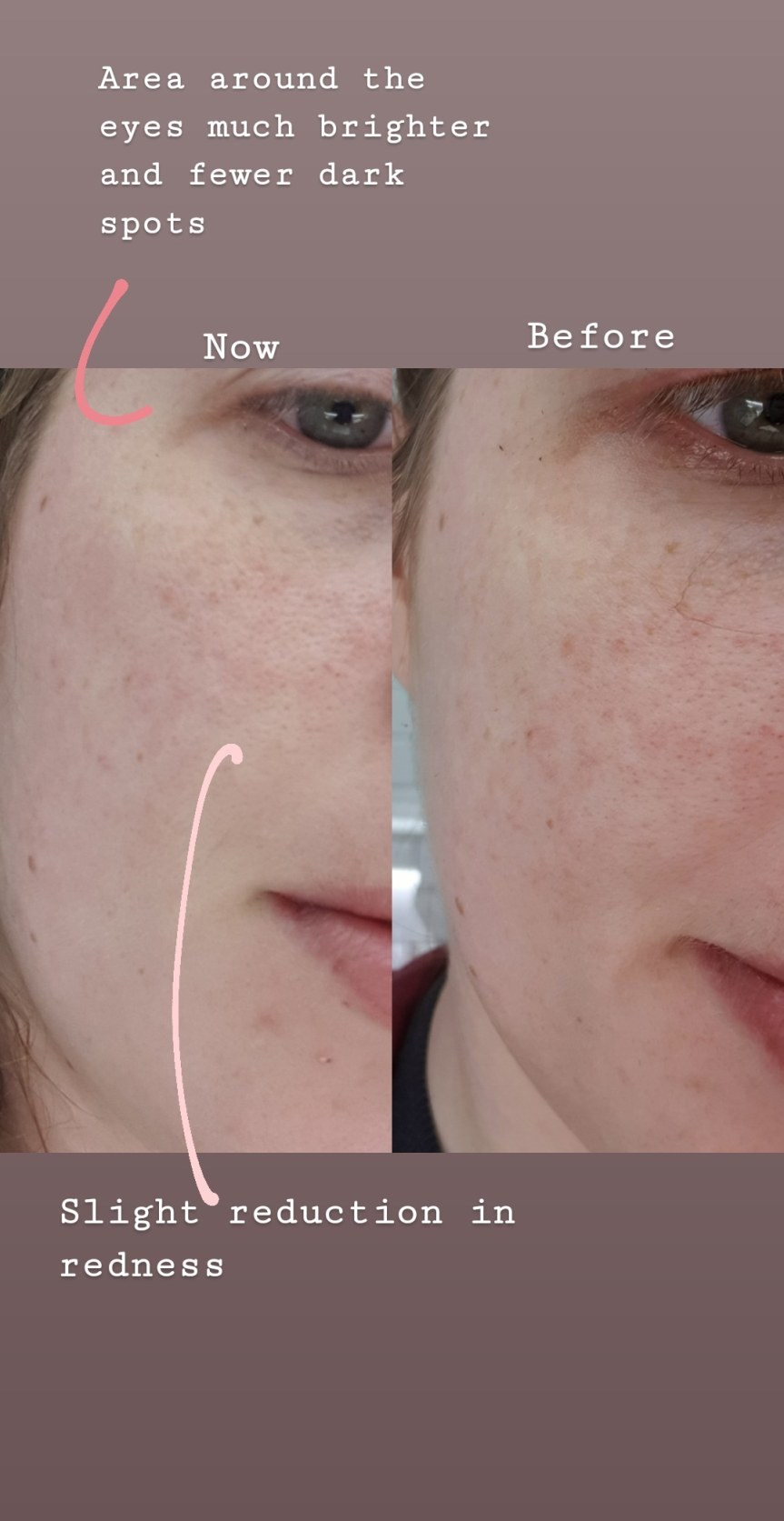 jumiso all day brightening and balancing serum before and after